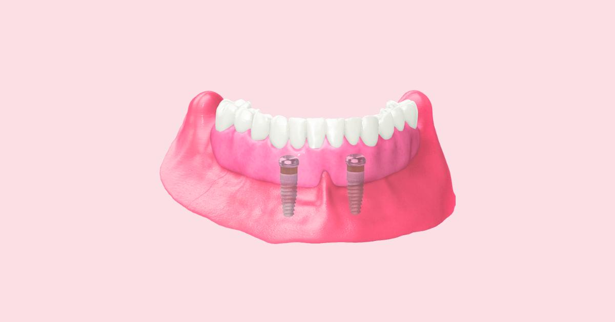 Implant-Retained Dentures