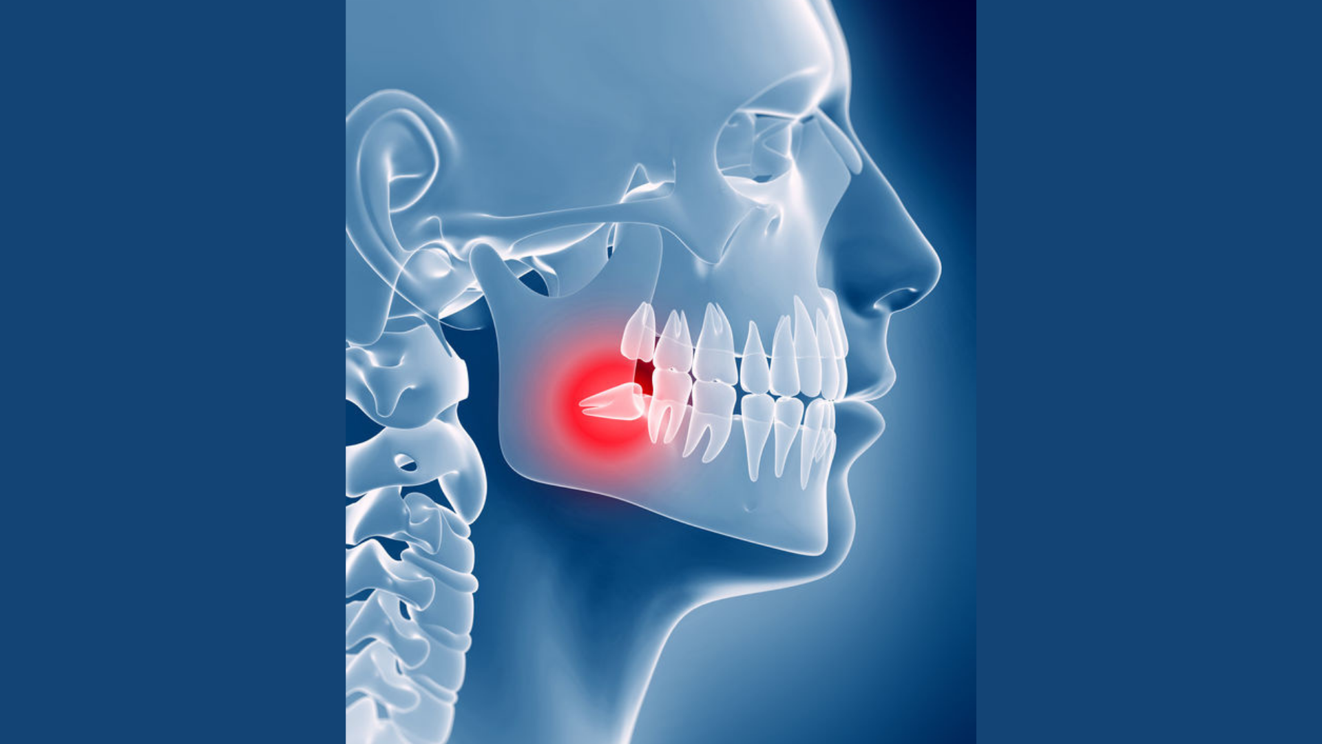 Wisdom Teeth Issues: Causes & Solutions
