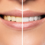 An Intro to Teeth Whitening